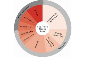 The ilegx wheel was developed with the goal of clarifying the interdisciplinary nature of the causes leading to leg and foot tissue loss, and is designed to speed up patient referral in order to prevent this.